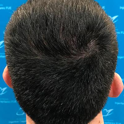trasplante de cabello en Lima