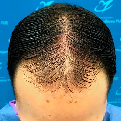 trasplante de cabello Lima